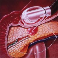 endosonografia ticino